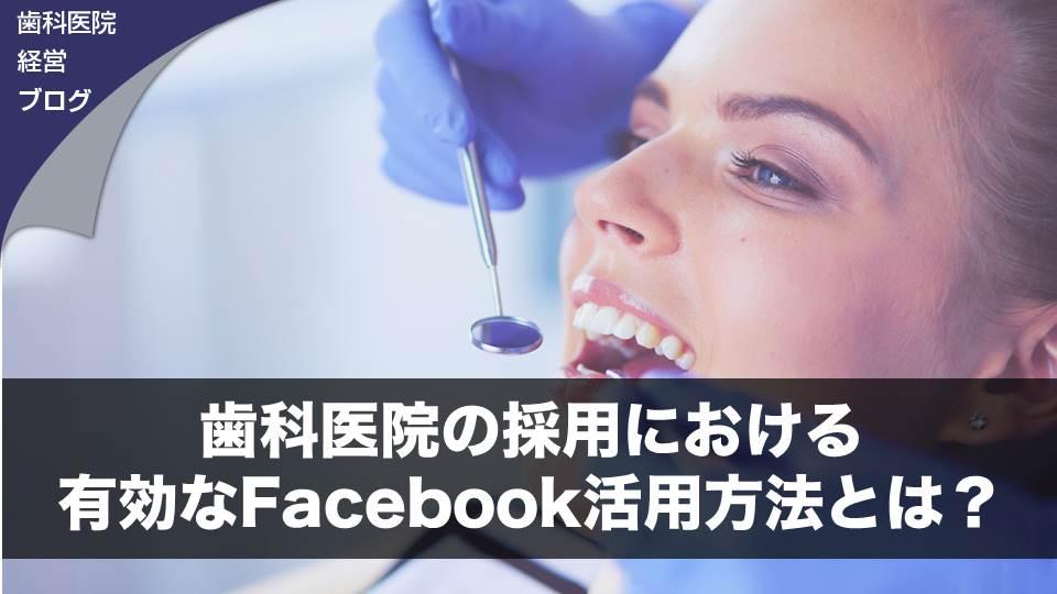 歯科医院の採用における有効なFacebook活用方法とは?