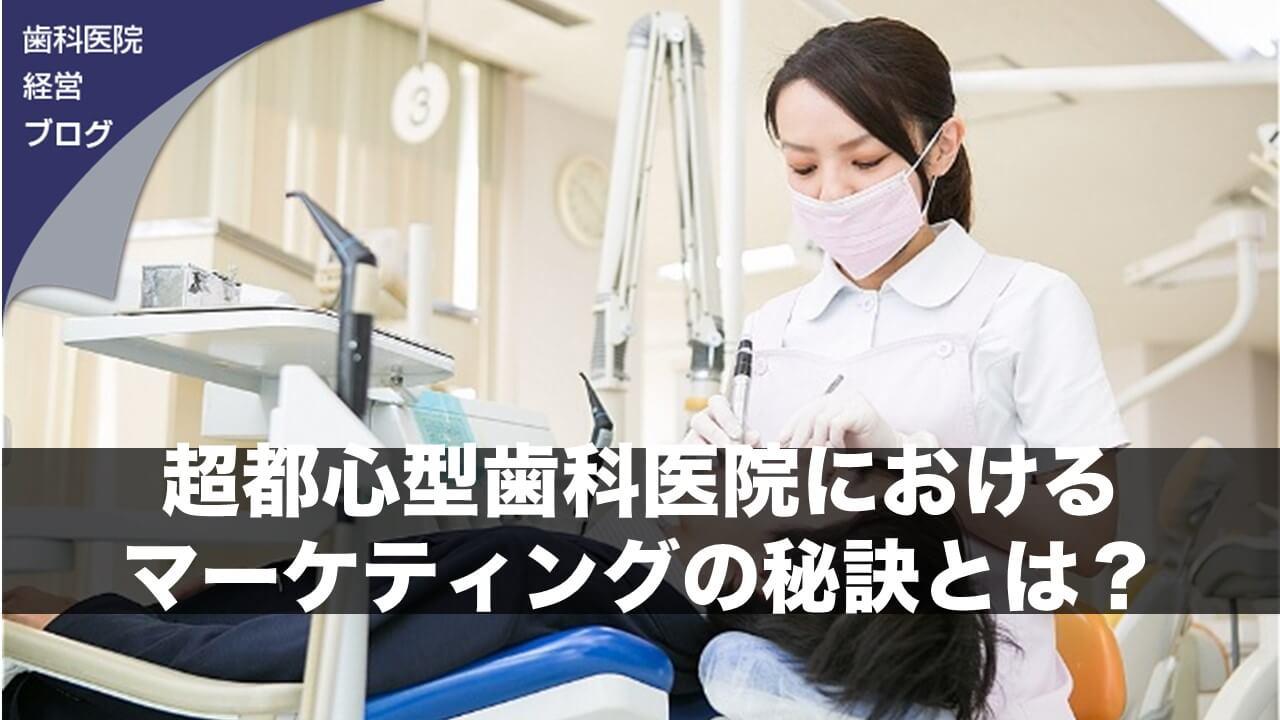 超都心型歯科医院におけるマーケティングの秘訣とは?